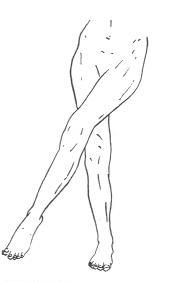 Aducción de la cadera